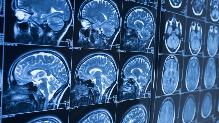 Quantos anos tem seu cérebro? Cientistas treinam IA para revelar idade cerebral - 1