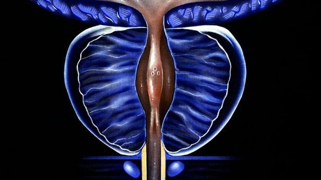 Exame com Inteligência Artificial pode diagnosticar câncer de próstata - 2