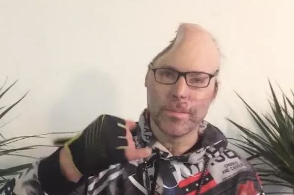 Rapper mostra que perdeu parte da cabeça após explosão em laboratório de drogas - 1