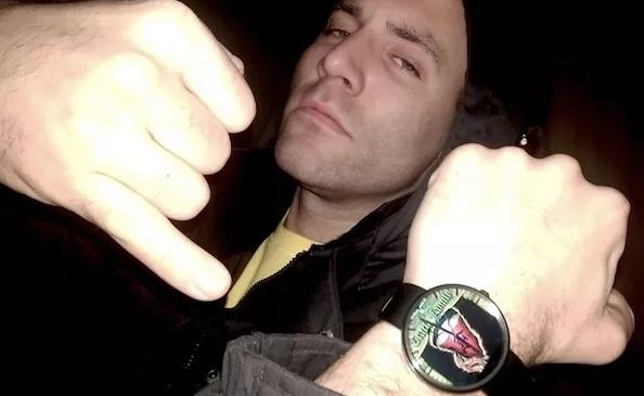 Rapper mostra que perdeu parte da cabeça após explosão em laboratório de drogas - 2