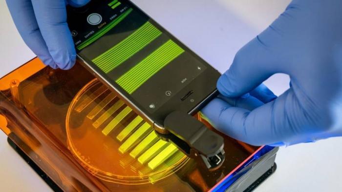 Médicos usam smartphone para detectar infecção urinária em apenas 25 minutos - 1